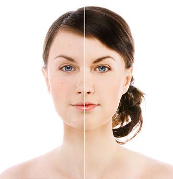 Fettige Haut kann auf unterschiedlichen Ursachen beruhen