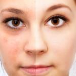 Augenringe und geschwollene Augen können viele Ursachen haben